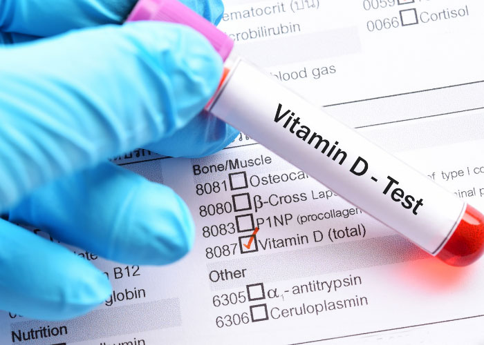 Vitamin D Deficiency is determined through a blood test.